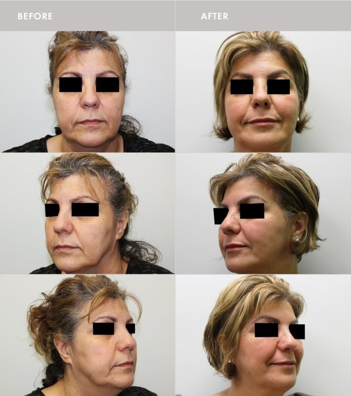facelift montreal, FACE