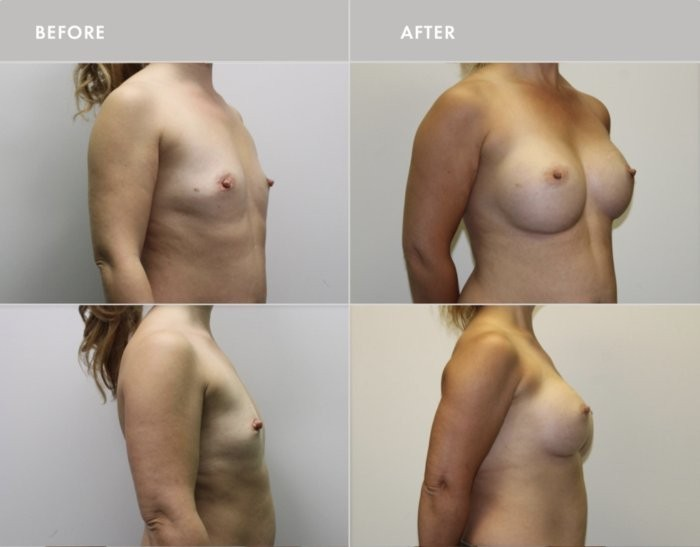 Before & After Breast Surgery