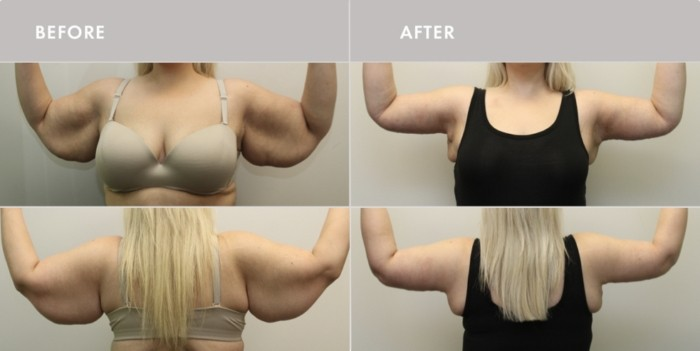 Before & After Body