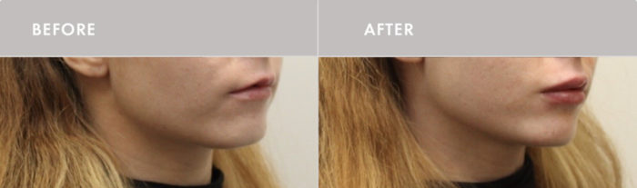 , Injectables