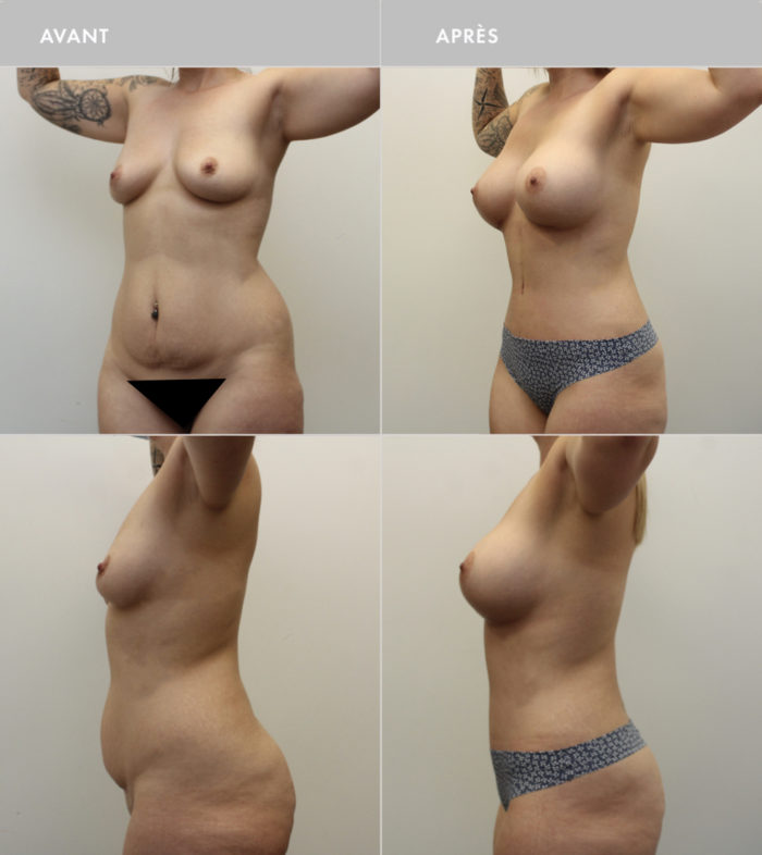 Before & After Photos of Body Plastic Surgery, PROCÉDURES DU CORPS