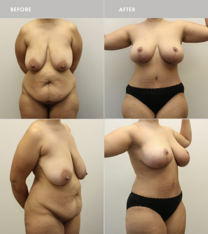 Before & After Photos of Body Plastic Surgery, Before & After Body
