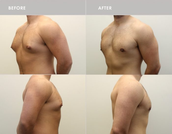 , Male Chest Reduction